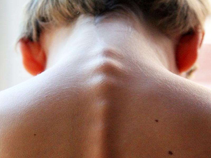 Lombalgia Osteopatia
