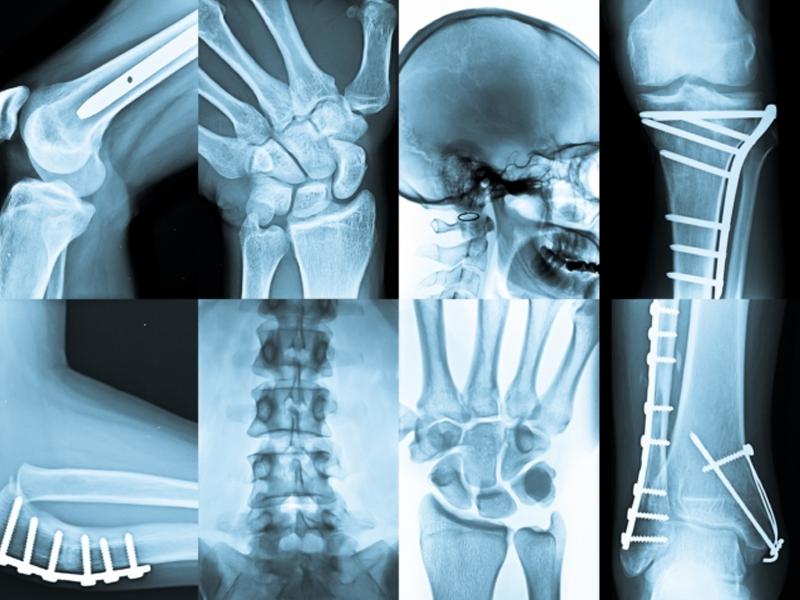 tac radiologia osteopata milano giorgio germano