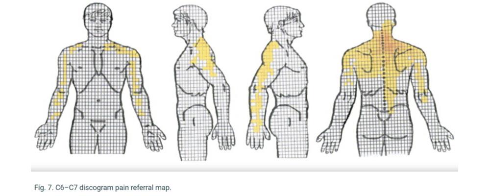 mal di schiena osteopata milano milano